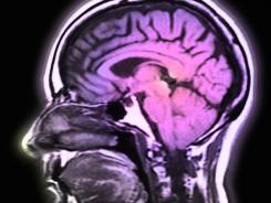 New research suggests that the outer edges of the brain are thinner in older people who may be destined to develop Alzheimer's disease, but there's currently no way to use the information to help people fend off dementia.