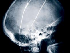 This undated image provided by the Cleveland Clinic in Cleveland, shows the X-Ray image of a patient with Deep Brain Stimulation (DBS) leads implanted. Deep brain stimulation is routinely done for Parkinson's disease and some other illnesses.