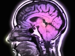 "Experts say a normal brain should be able to process lots of diverse information. New research reveals that the brains of people with depression are ""less versatile"" in that regard."