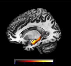 The 3-D overlay of the study results shows the hippocampal volume in patients with early Alzheimer's Disease.  The hippocampus is responsible for learning and memory in the brain, and is one of the first areas damaged by Alzheimer's disease.  It is also one of the only areas of the brain that can undergo adult neurogenesis, or new growth.