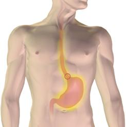 GERD is characterized by the frequent rise of stomach acid into the esophagus.