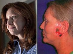 Joyce Wooten, left, says her surgery four years ago left her with lopsided ears and hanging skin. Michelle Cordi, right, sued because of wounds that didn't heal around her ears.